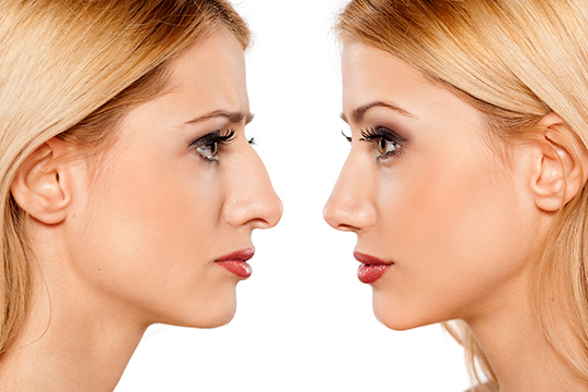 Rhinoplastik Before - After
